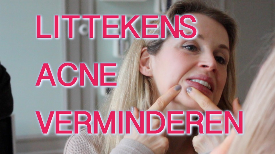 acne-littekens-verminderen